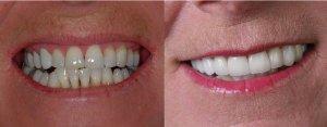 receding gums repair desntist charlotte nc