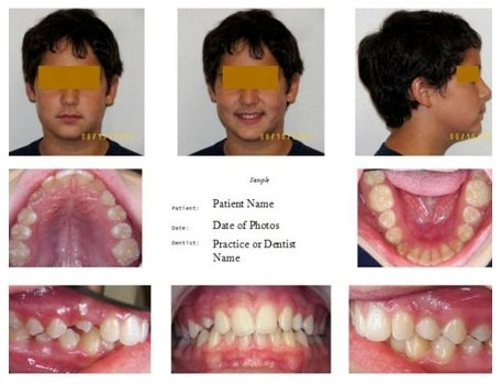 dental digital photography example