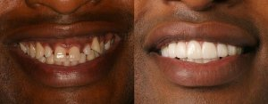 carlton-teeth-before-after
