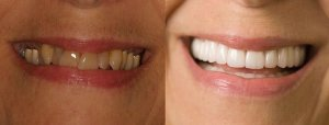 28 crowns and veneers ballantyne charlotte for Ellen