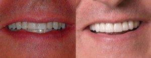 john full mouth recontrcution teeth