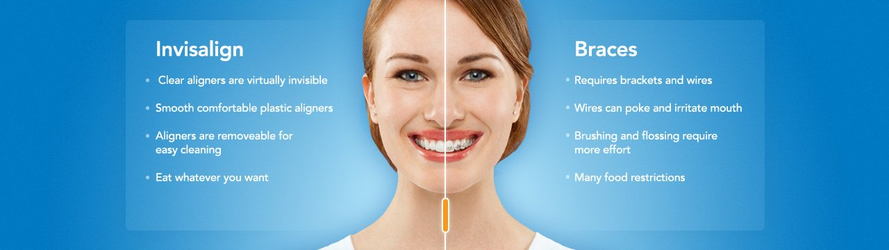 invisalign clear braces charlotte nc