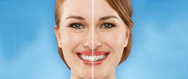 invisalign braces adult dentistry ballantyne charlotte nc