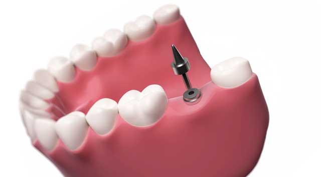 single dental implant adult dentistry ballantyne charlotte nc