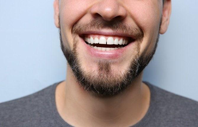 adult-dentistry-of-ballantyne-zoom-whitening-man-charlotte-nc