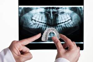 Adult-Dentistry-of-Ballantyne-Charlotte-NC-mouthguard-bruxism