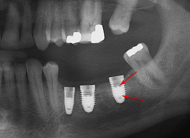Extraction Site Preservation Advanced Palmyra Dentistry