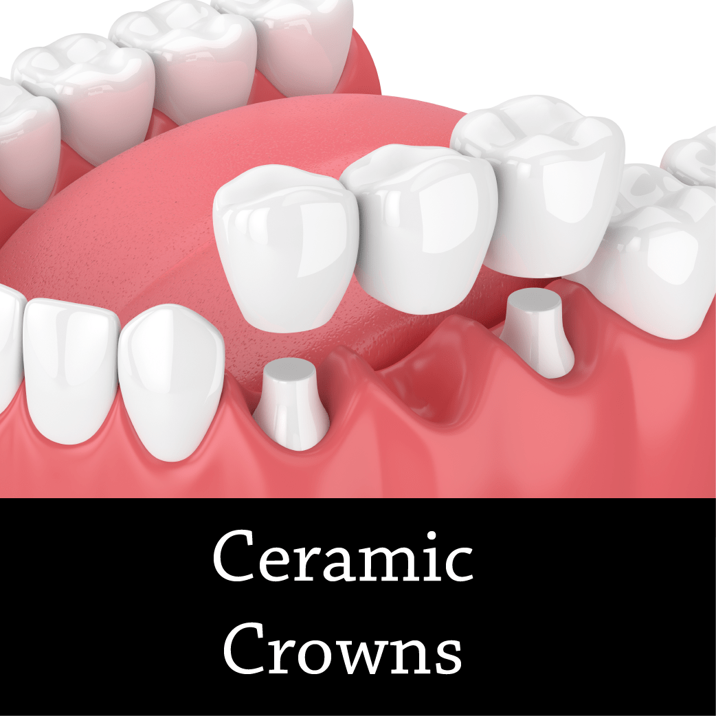 Ceramic Crowns - Cosmetic Dentist Fairfield