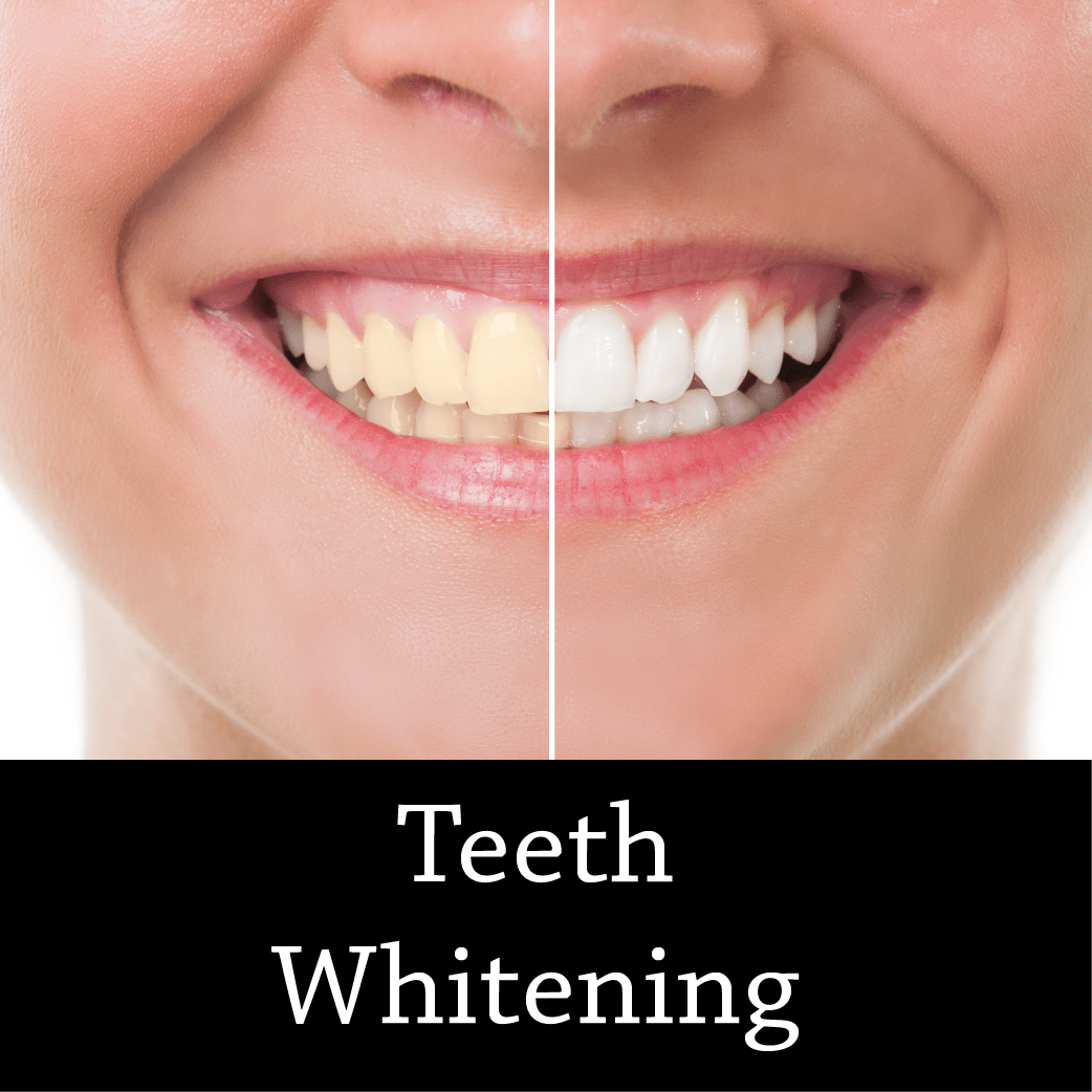 Teeth Whitening for Life - Cosmetic Dentist Fairfield