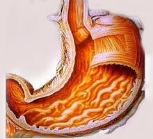 H. pylori induced gastritis