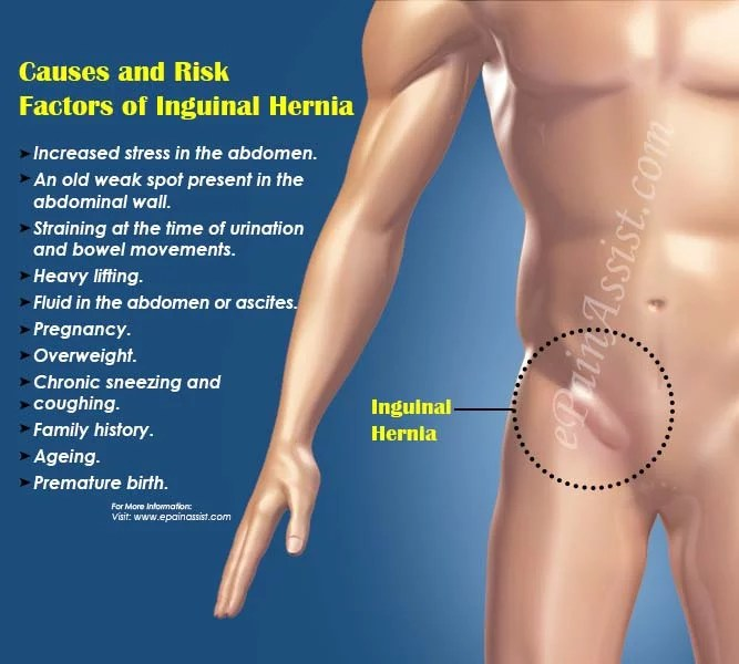 Indirect Direct And Inguinal Hernia Difference Between Repair