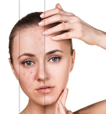 Healing effects of skin care products