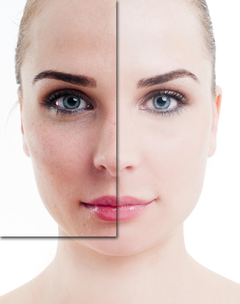 Reduce hyperpigmentation