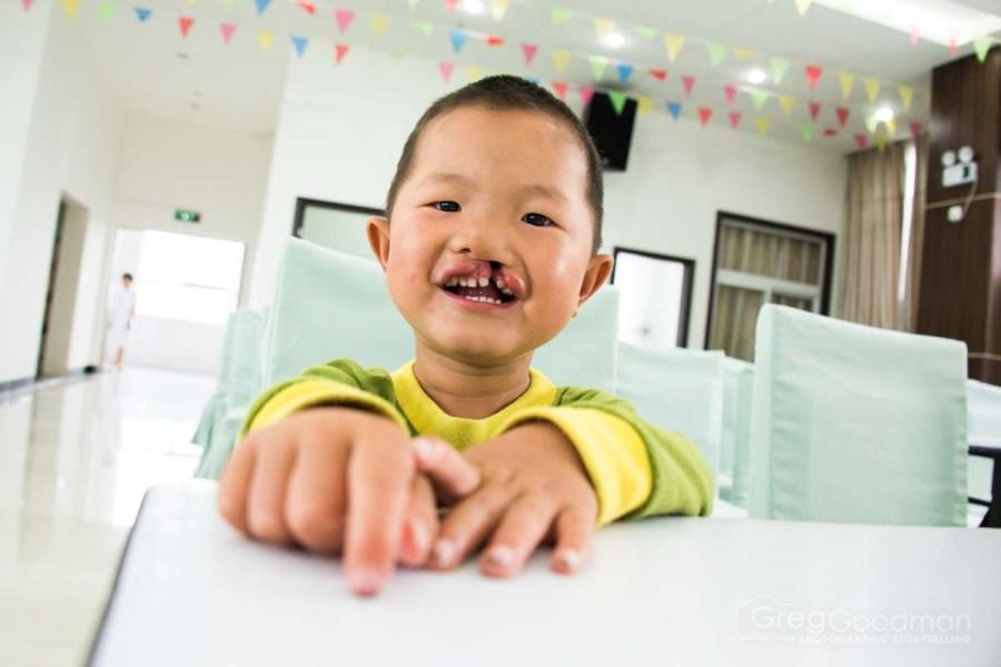 Alliance_For_Smiles-Xingyi-Greg_Goodman-AdventuresofaGoodMan-5