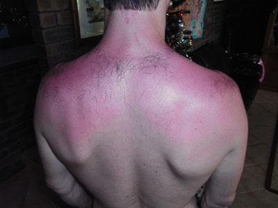 Sun burned back