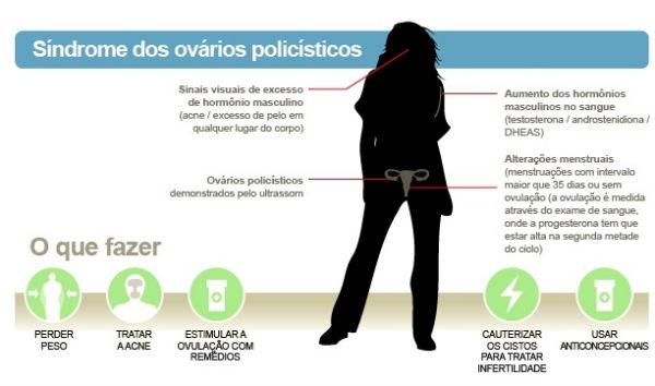 ovario policistico1 sindrome