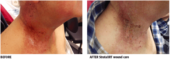 BEFORE and AFTER StrataXRT wound care