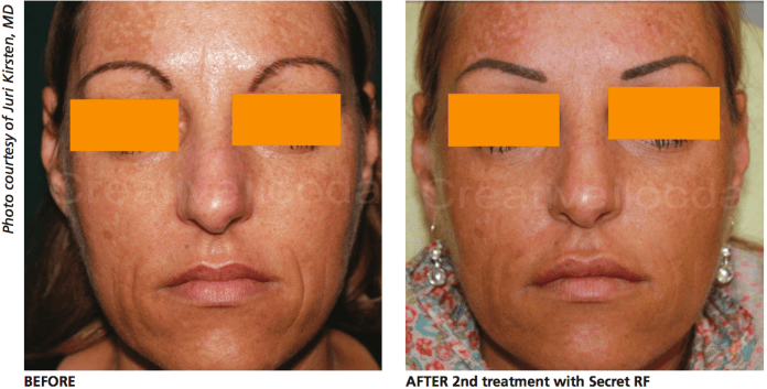 Before and After 2nd treatment with The Secret