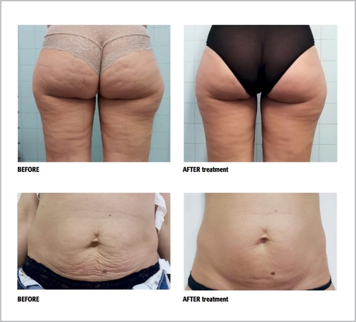 Onda before and after treatment