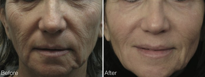 before and after eCO2 treatment