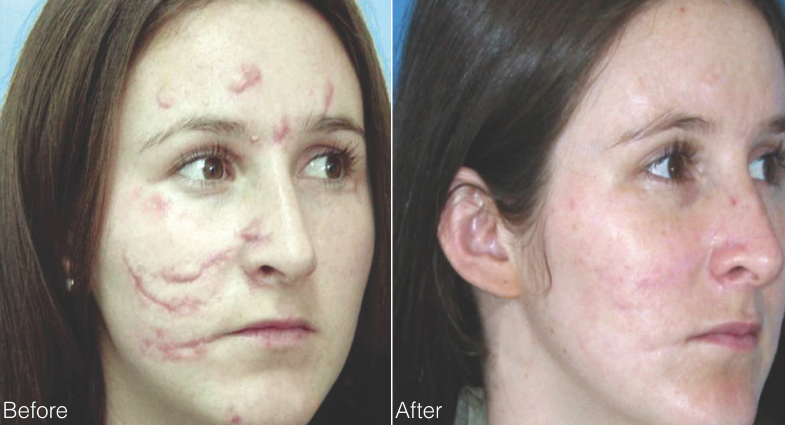 before and 9 months after treatment with eCO2