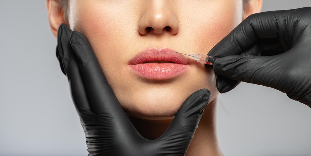 Lip enhancement injections