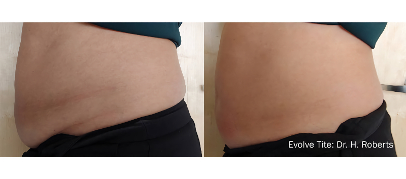 BEFORE & AFTER treatment with InMode EVOLVE
