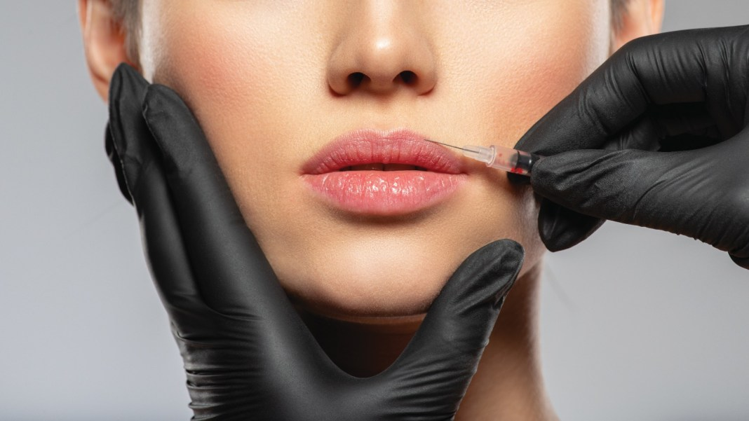 Facial Aesthetic Injections study