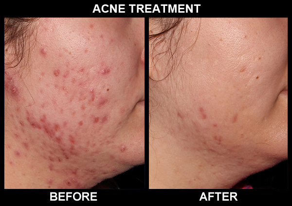 acne-treatments1_b_n_a_cropped