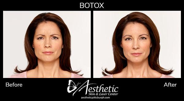 botox-b-a-3