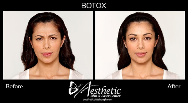 botox-b-a-4