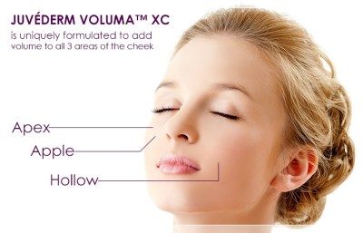 Juvederm fillers Pittsburgh