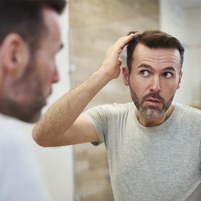 men hair loss thinning hair