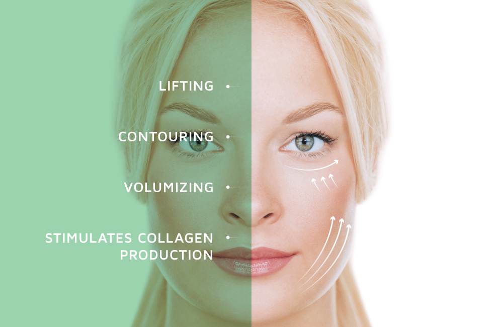 NovaThread facelift available in Pittsburgh