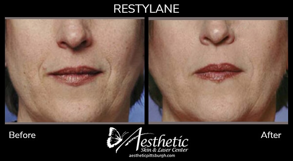 restylane3_before_after-1