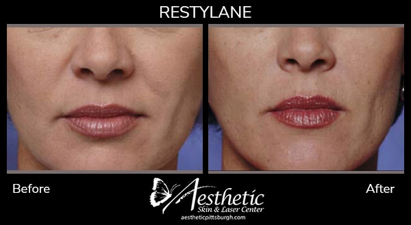 restylane9_before_after-1