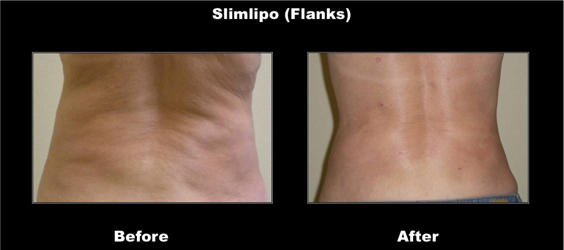 slimlipo-flanks