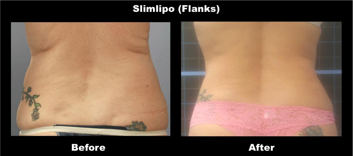 slimlipo-flanks3