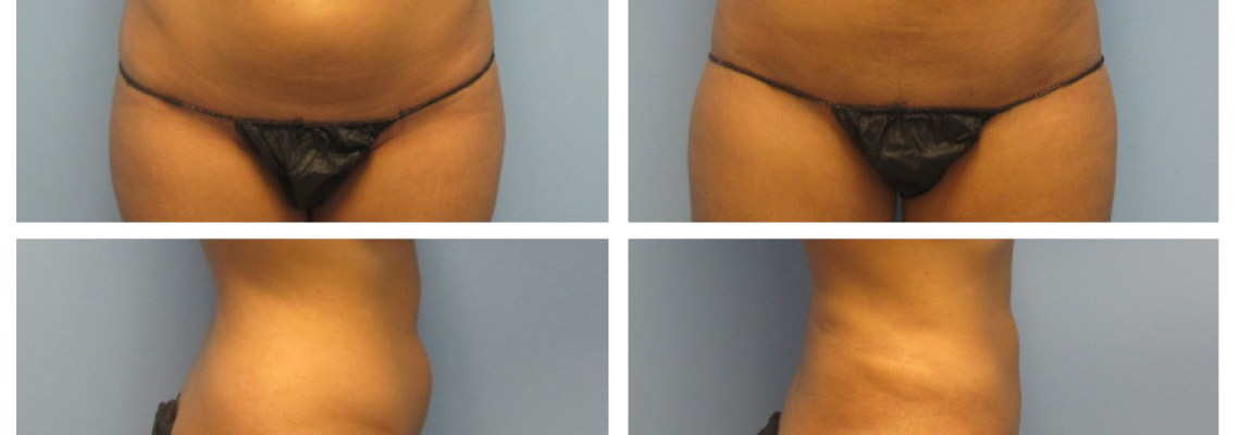 The Benefits of Ultrasound Assisted Liposuction