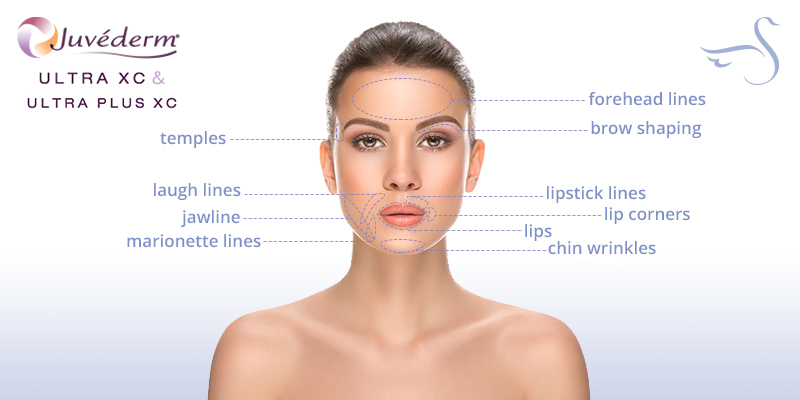 Facial Fillers in Naples