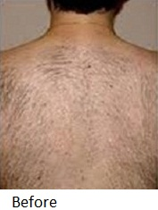 Laser-Hair-Removal-Before