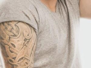 tattooentfernung-rostock-mv-aesthetikzentrum-rostock-laser