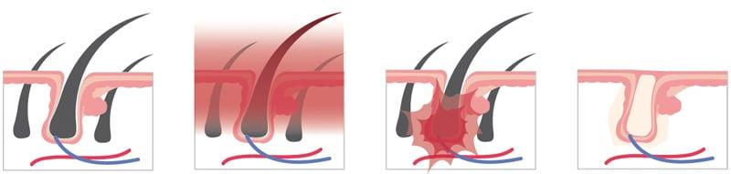 dauerhafte haarentfernung rostock laser