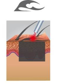 erste Laserbehandlung