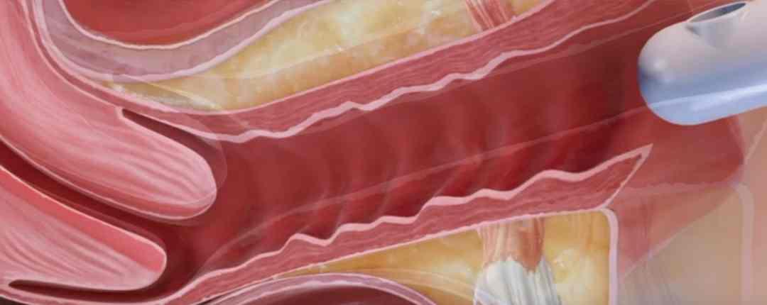 inkontinenz laserbehandlung rostock