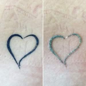 Tattooentfernung Rostock 1. Sitzung