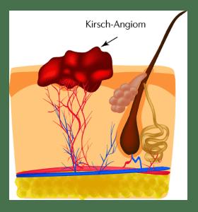 hemangioma removal entfernung kirsch angiom laser rostock