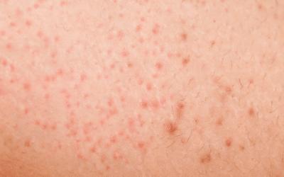 Hilfe bei Rasurbrand, eingewachsenen Haaren, Follikulitis – die Lasertherapie