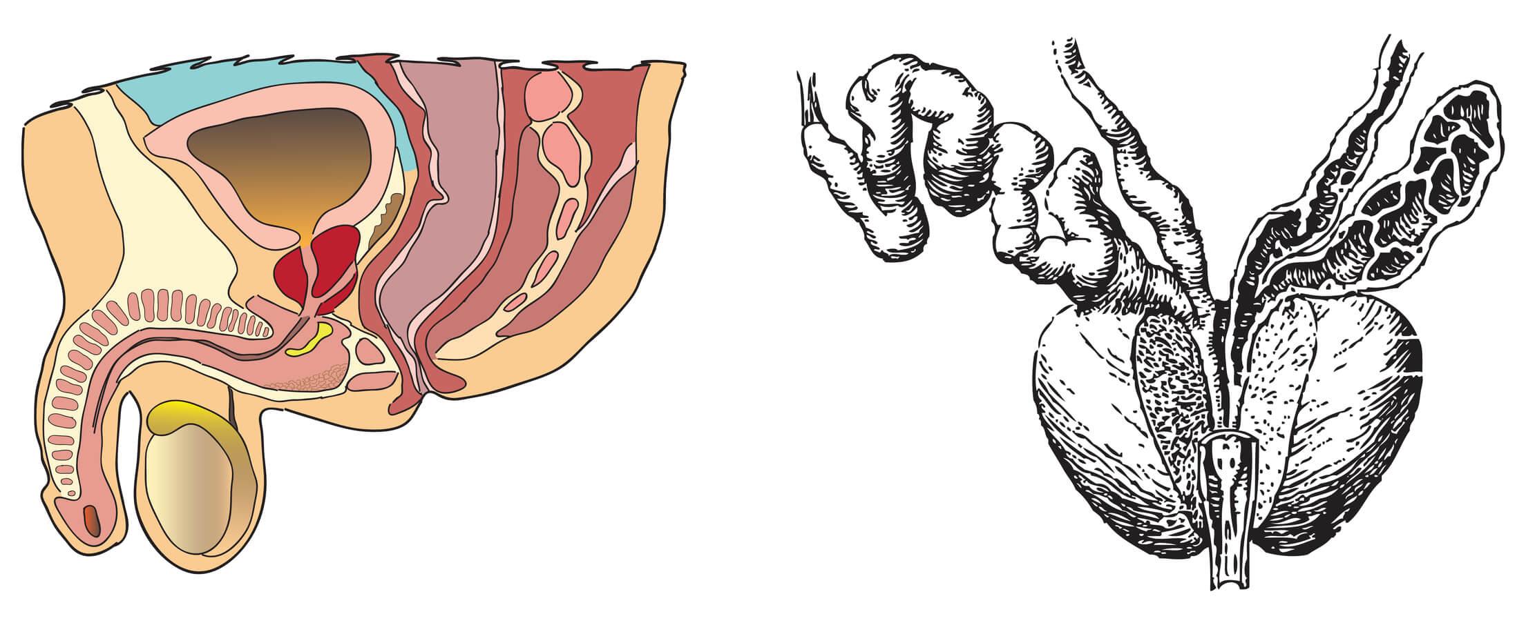 kako izleciti hronicni prostatitis