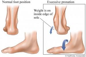 h9991601_001-300x200 لماذا تؤلمك قدماك؟ المزيد